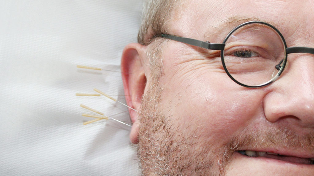 Akkupunktur – sanfte traditionelle Heilung?